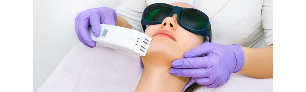 Chin Laser Hair Removal for Women