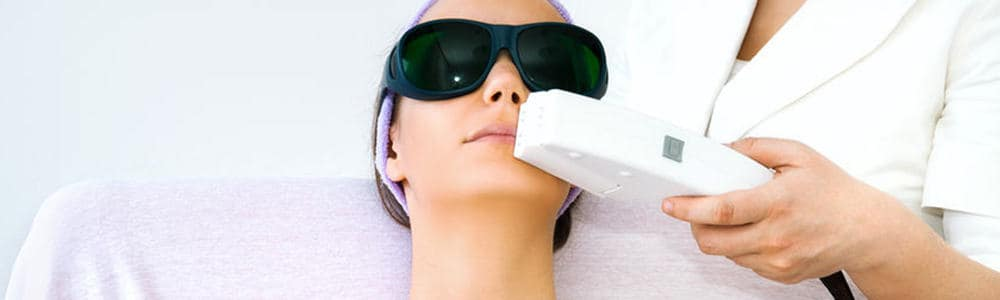 Lip Laser Hair Removal for Women