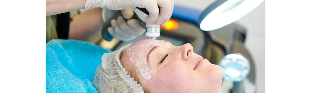 Forehead Laser Hair Removal for Women