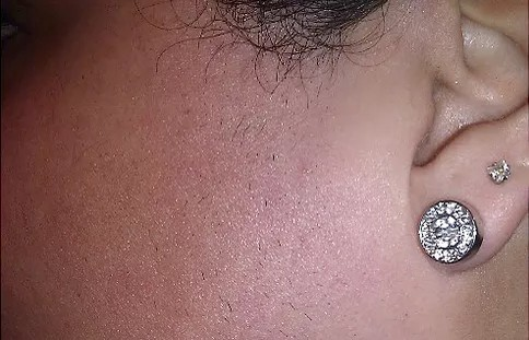 a person hairy side burns after it traetment