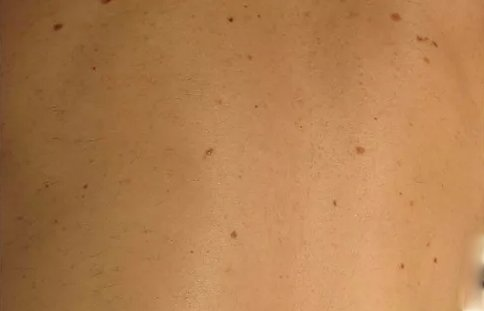 a mens hairy back after hair removal procedure