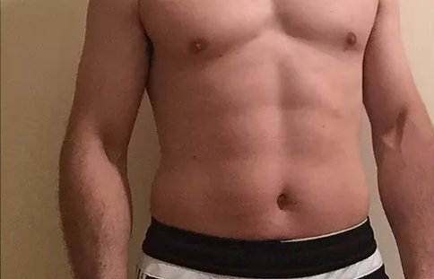 a guy with hairy chest after laser hair removal