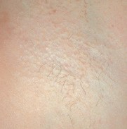 a persons hairy armpit after hair removal