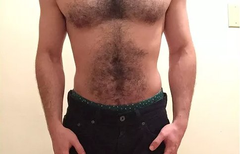 a guy with hairy chest before laser hair removal