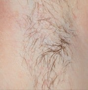 a persons hairy armpit before hair removal