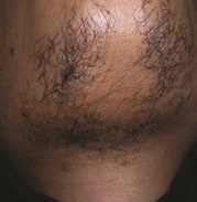 a mens chin with hair before hair removal