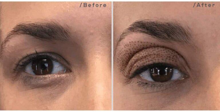 skin rejuvenation eyebags