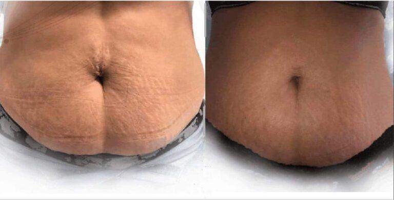 fibroblast tightening abdomen