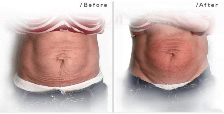 fibroblast abdominal