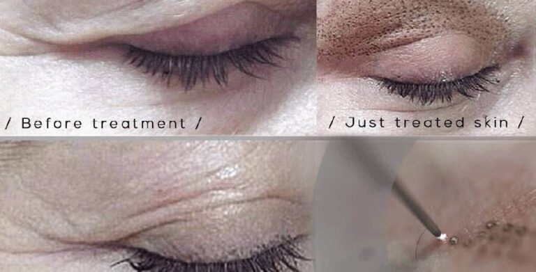 skin tightening eyelids