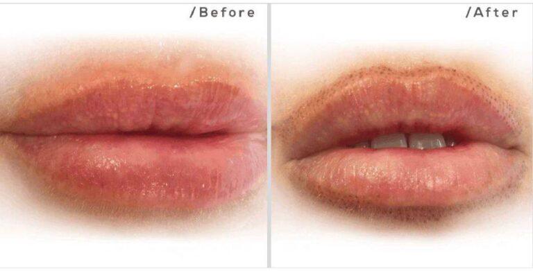skin tightening lips