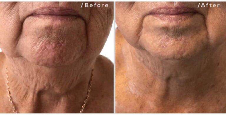skin tightening neck